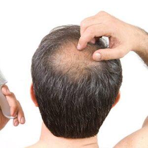 Métodos de tratamiento para la alopecia