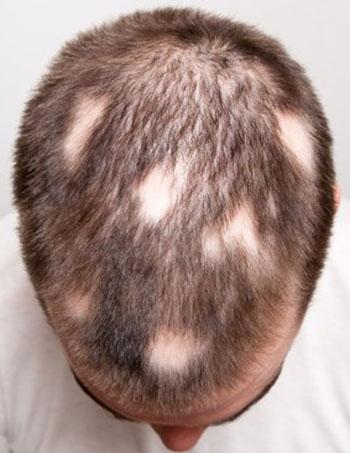 Arten von Alopezie und Behandlungen