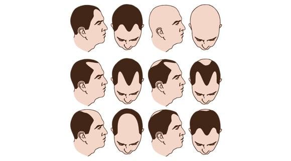 verschiedene Arten von Alopezie bei Männern